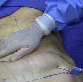Hà Nội: Nữ bệnh nhân 25 tuổi tử vong khi phẫu thuật hút mỡ bụng tại bệnh viện An Việt