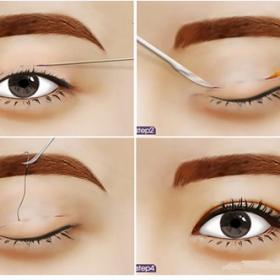 Chuyên gia Giải mã cắt mí mắt là gì đầy đủ và chính xác nhất – THAM KHẢO NGAY