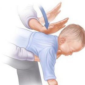 Giải mã Heimlich – Biện pháp cứu trẻ trong giây phút nguy kịch vì hóc dị vật