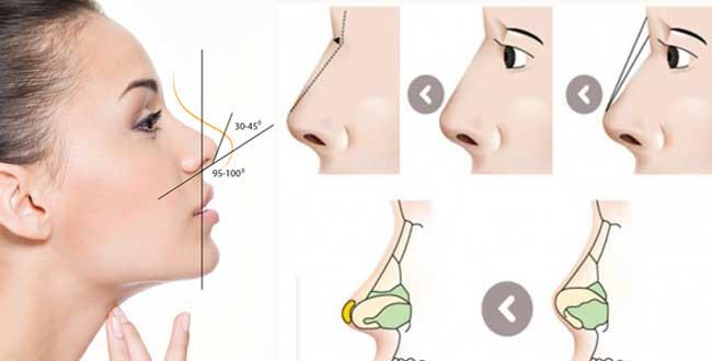 Phẫu thuật nâng mũi là gì? – Chuyên gia phẫu thuật hàng đầu giải đáp