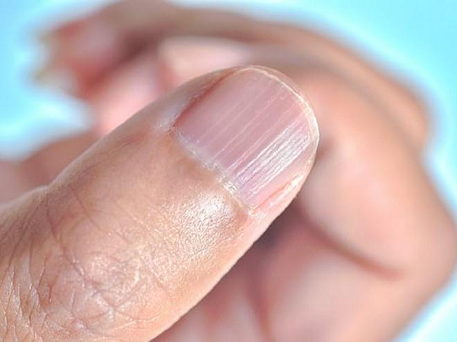 """Người phụ nữ bị nhiễm """"vi khuẩn ăn thịt người"""" khi làm móng tay"""