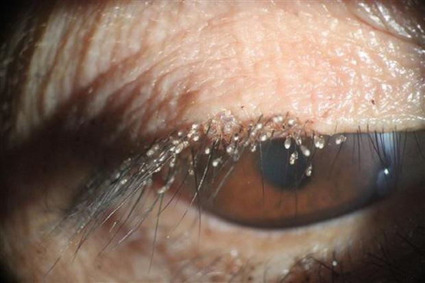 Gai người cảnh bọ ve làm tổ dày trên hàng lông mi của người phụ nữ lười tẩy trang