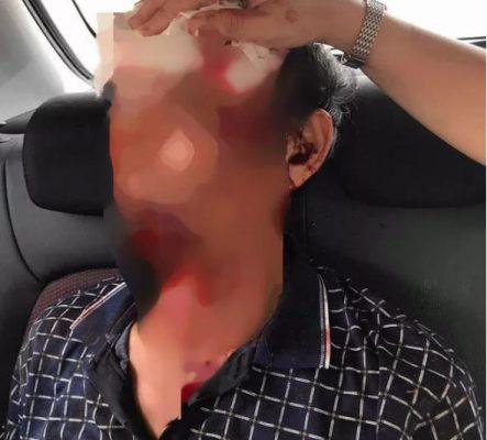 Sau tiếng súng nổ vang, 3 người đang ăn cơm bị đạn găm như tổ ong