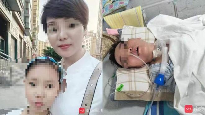 Người phụ nữ hôn mê 3 tháng chưa có dấu hiệu tỉnh sau phẫu thuật nâng mũi