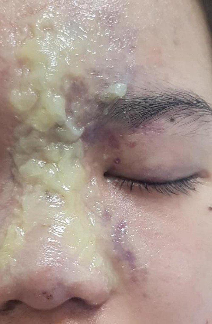 Tiêm filler nâng mũi nhầm vào mạch máu, thiếu nữ 15 tuổi mù mắt vĩnh viễn