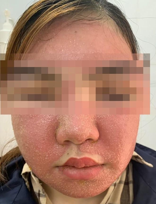 Dùng mặt nạ làm trắng da mua trên mạng, cô gái bị sưng phù mặt, nổi mụn mủ chi chít