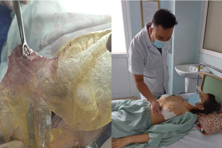 Người phụ nữ Hà Nội bị vỡ túi ngực sau 6 năm phẫu thuật nâng ngực