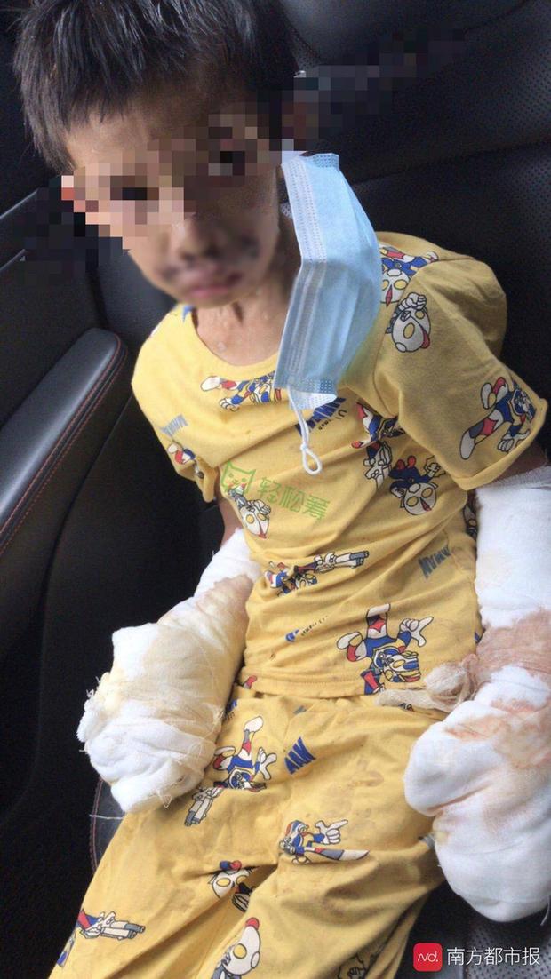 Bé trai 7 tuổi tàn phế vì bị bạo hành: Bố đâm tàn thuốc khắp người, mẹ dùng dao khứa vào chân